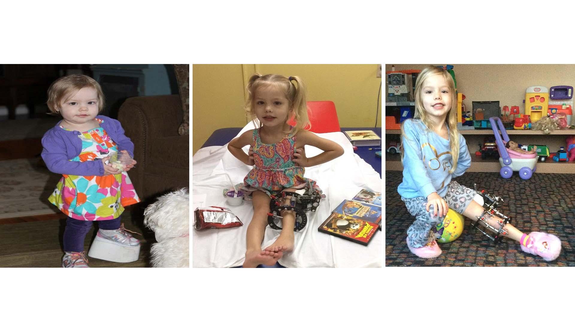 Una madre decidió romper la pierna de su hija tres veces al día durante cuatro meses para inducir el desarrollo de la extremidad
