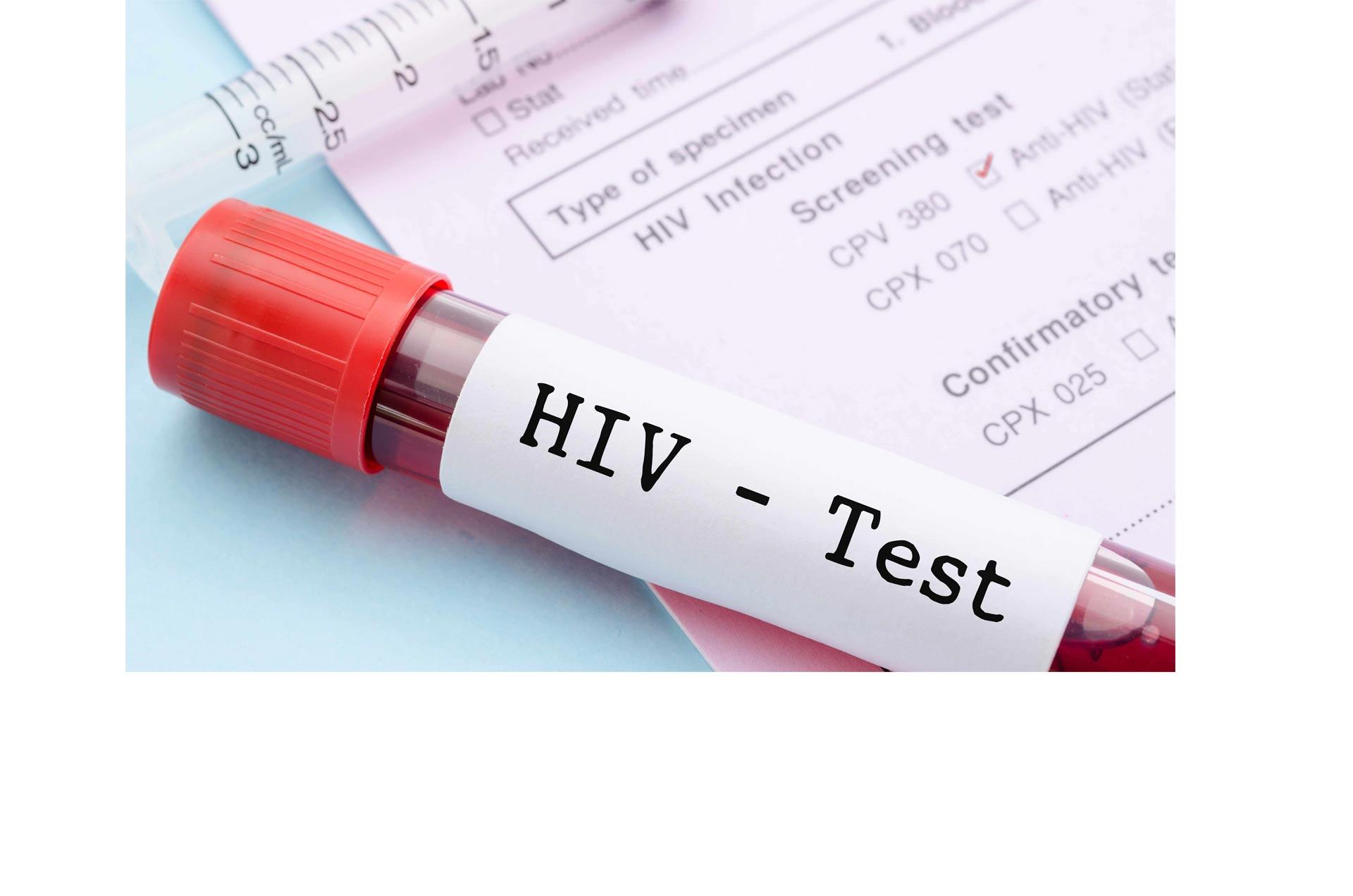 VIH indetectable es difícil de contagiar