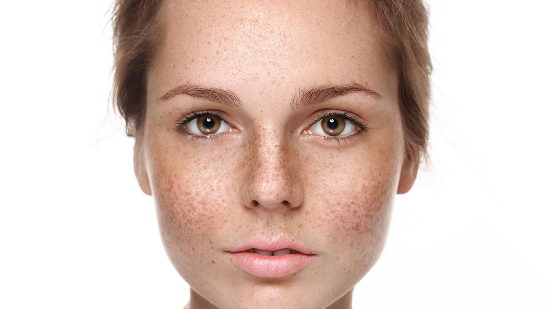 Protege tu piel y rostro ante el sol