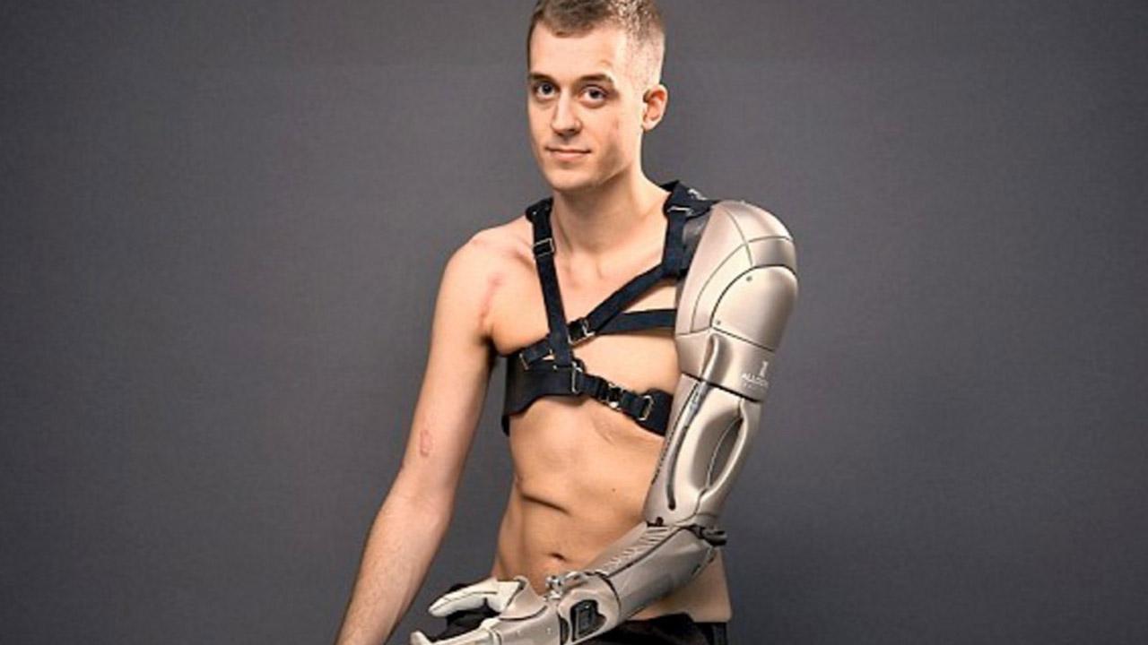 Los brazos mecánicos estarán disponibles el próximo año
