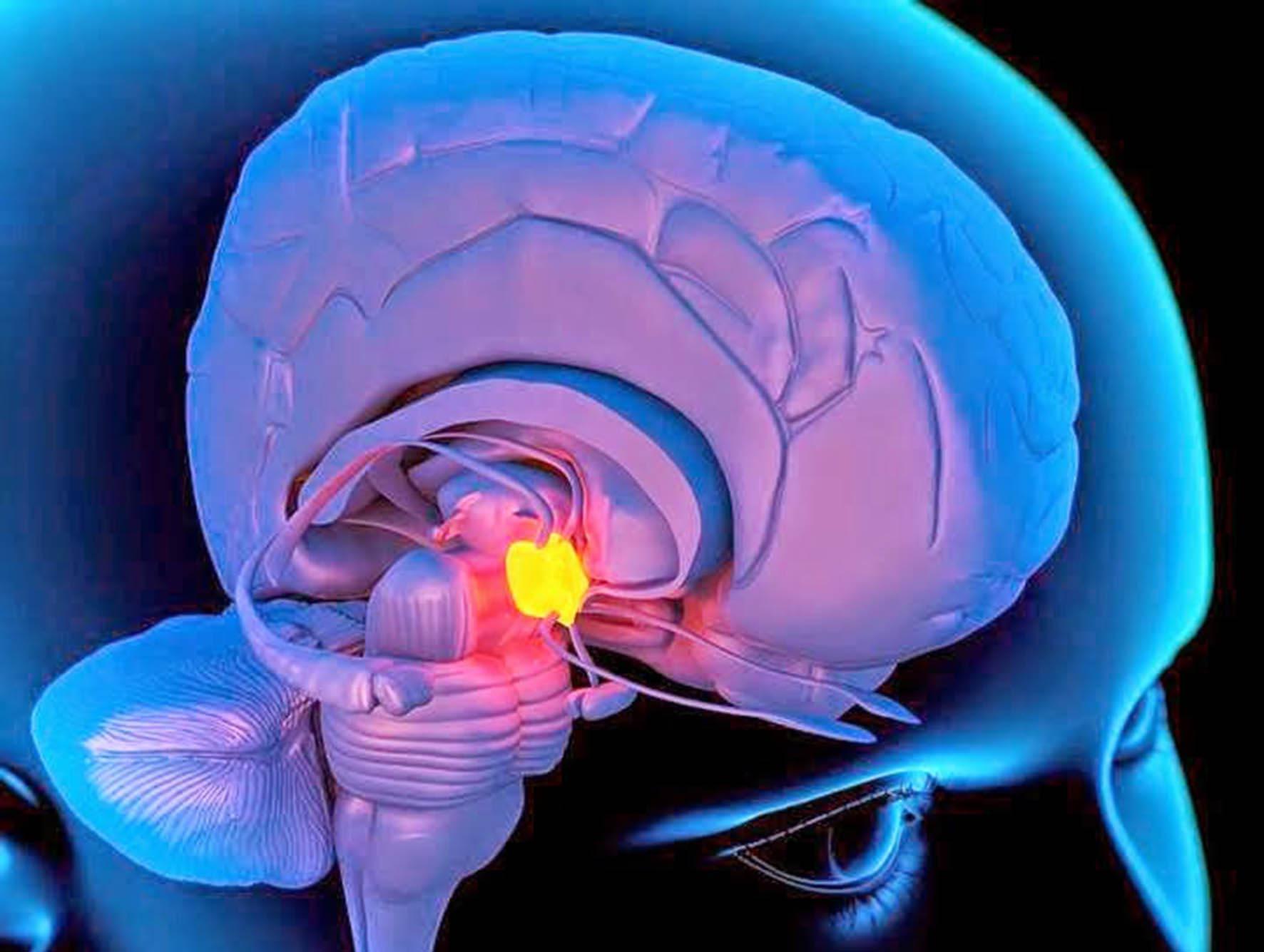 Aunque este fenómeno no ha sido explicado del todo por la ciencia se cree que tuvo que ver la presencia de un tumor en la glándula hipófisis