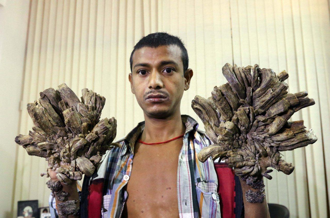 Abul Bajandar presenta en sus manos y pies verrugas en forma de cortezas