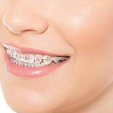 Estudio revela que la ortodoncia no asegura la salud bucal