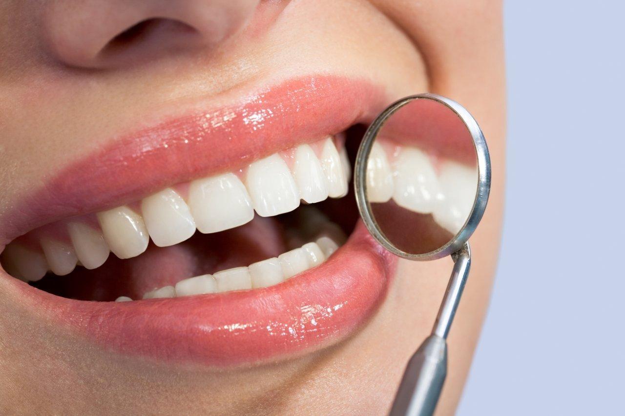 El uso adecuado de carillas en la odontología moderna, parte 2