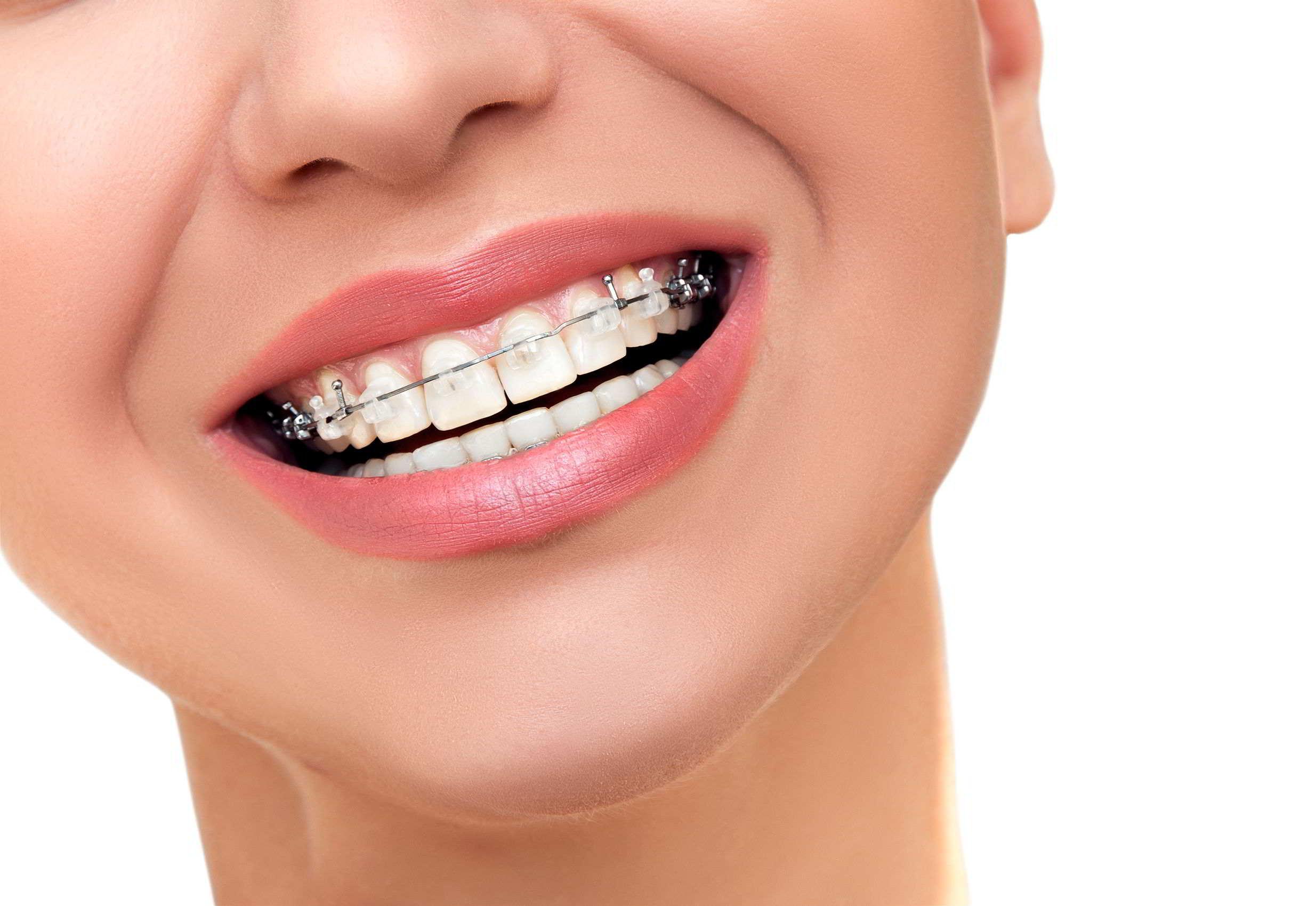 La culminación perfecta de un buen trabajo de Ortodoncia es el Blanqueamiento Dental